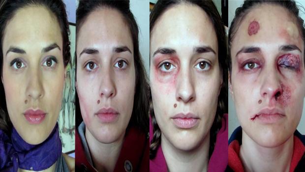violence domestique une femme battue se prend en photo pendant un an yzgeneration. Black Bedroom Furniture Sets. Home Design Ideas