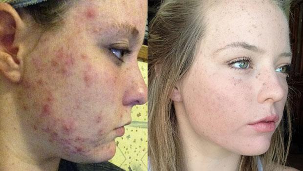 Recouverte de boutons d'acné, elle tente la Isotrétinoïne