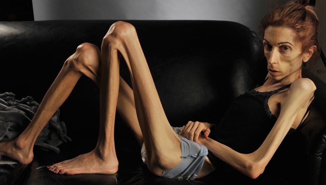 rachael farrokh je suis anorexique je fais 18 kilos