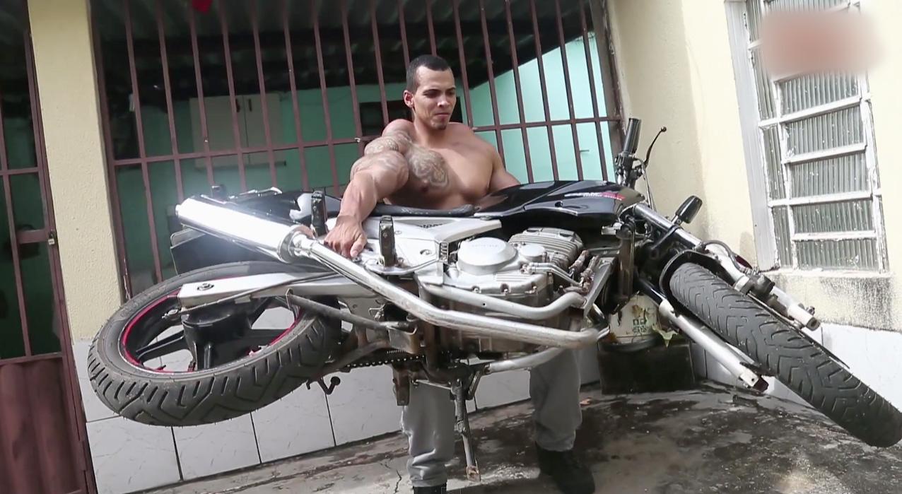 Romario-Santos-Bodybuilder-Injections-4