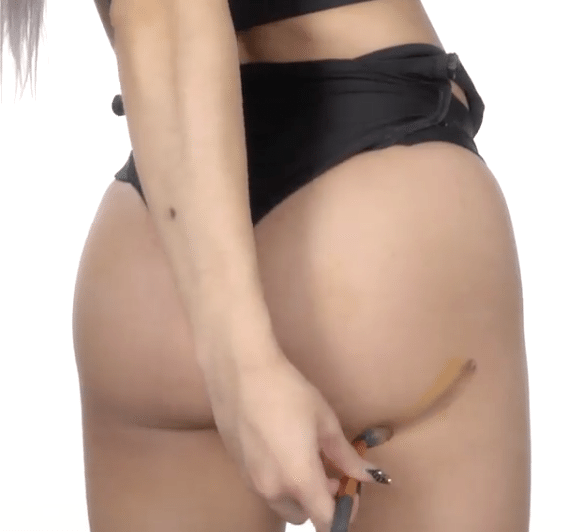 Butt-Contouring-Remodelage-Fesses-1